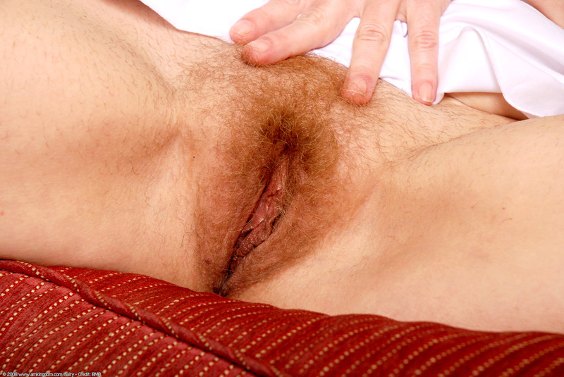 Of Abnormally Hairy Teens Pussy